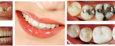 State of the Art Cosmetic Dentistry